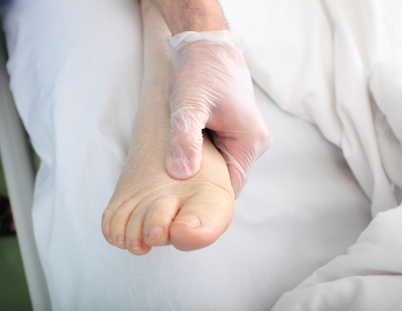 Flat Foot Problems And Its Causes