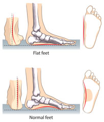 Illustration of Flat Feet